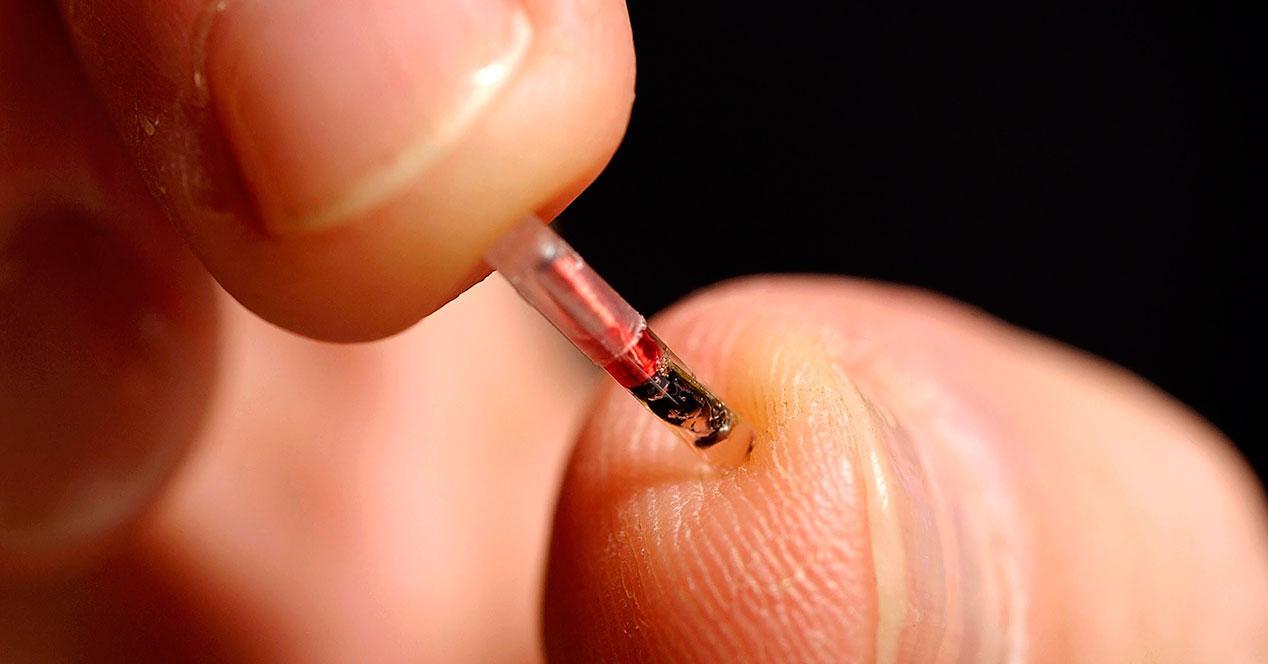 chips implantados en el cuerpo nfc tag