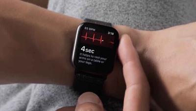 Cómo activar el electrocardiograma del Apple Watch en España