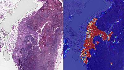 La inteligencia artificial detecta el cáncer de mama con un 99% de precisión