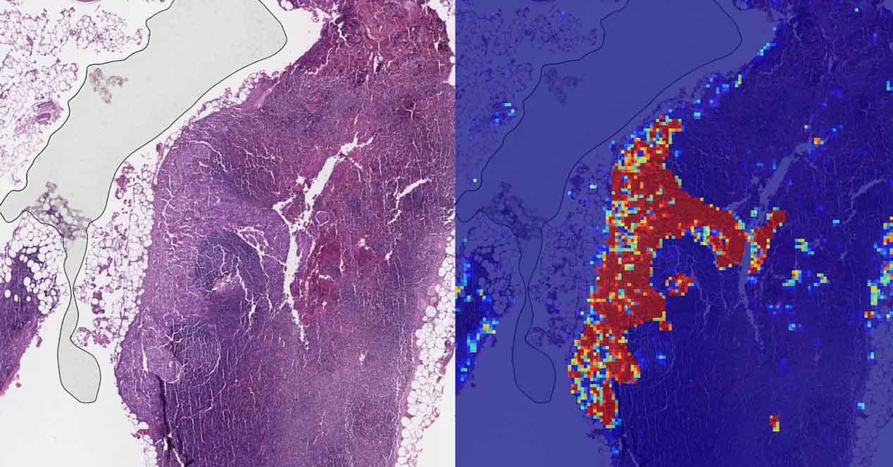 Ver noticia 'Noticia 'La inteligencia artificial detecta el cáncer de mama con un 99% de precisión''