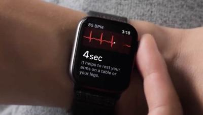 El ECG del Apple Watch 4 ya ha salvado una vida, y el caso se ha hecho viral