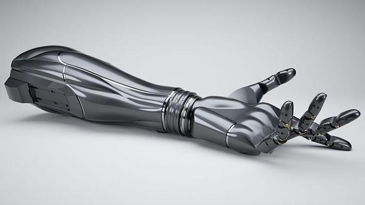 Prótesis 3D
